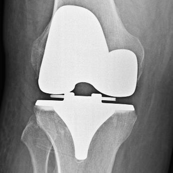 Post-Op Knee #1