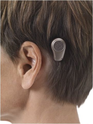 Bone-anchored hearing aid (Source: Wiki Commons)