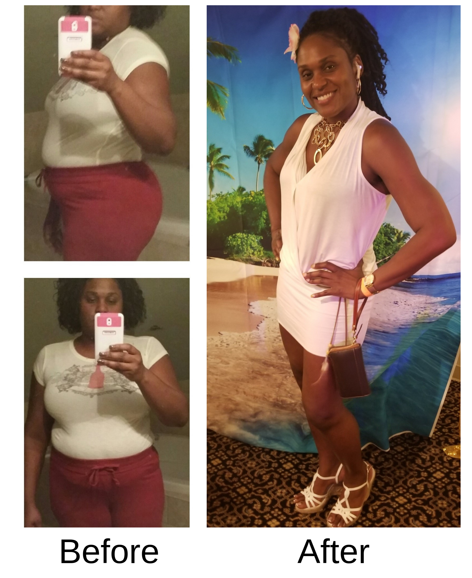 Before and after picture of weight loss