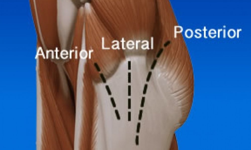 Update on Anterior Approach Hip Replacement