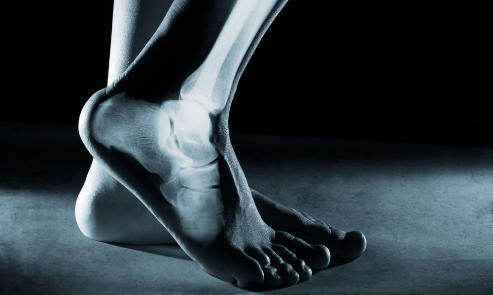 Ankle Arthrodesis