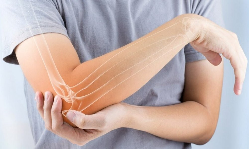 Lateral Epicondylitis (Tennis Elbow) Home Program