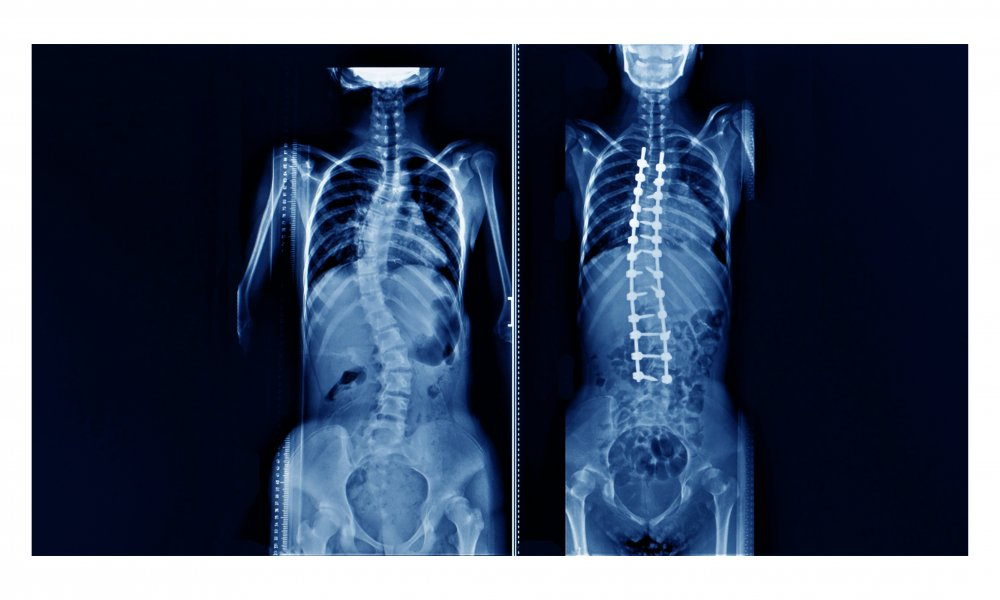 Scoliosis in Adults