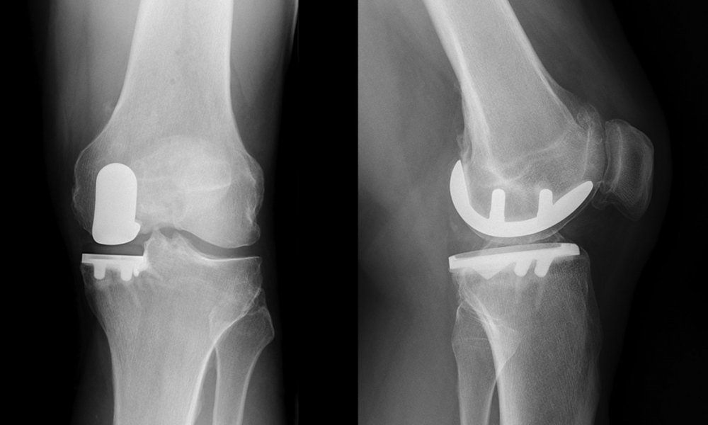Unicompartmental or Partial Knee Replacement
