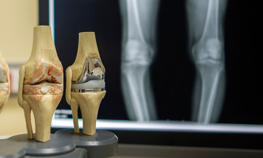 Dr. Barrett's Blog: What's new in Knee Replacement 2019