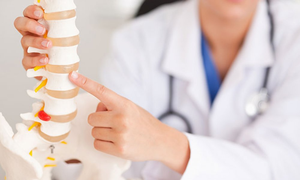 Stiff or Fused Spine, Total Hip Replacement, and Risks of Dislocation