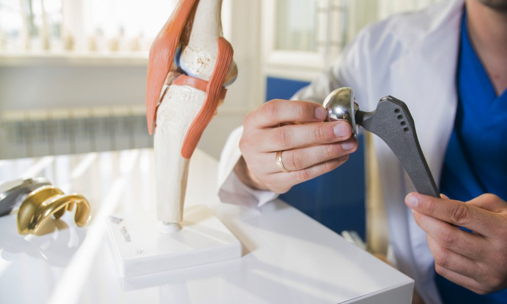 Doctor holds an artificial joint