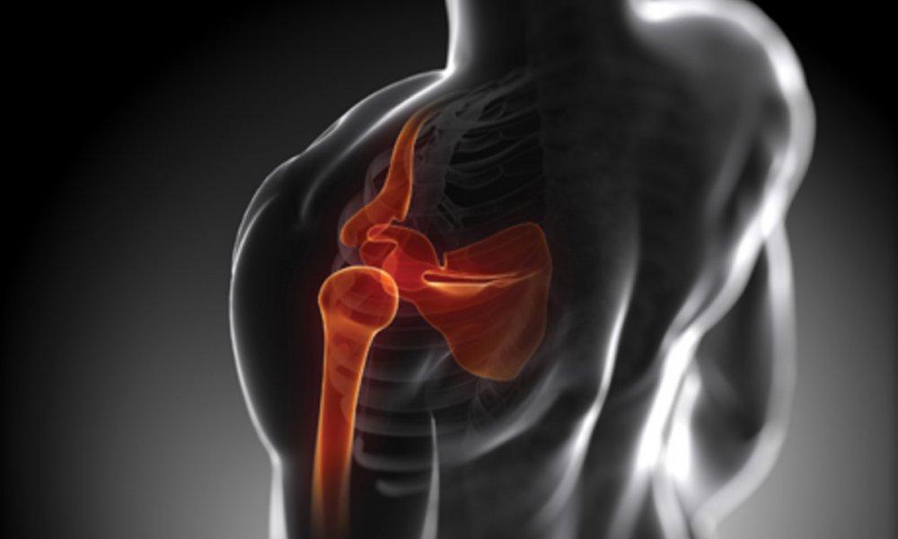 Common Shoulder Problems