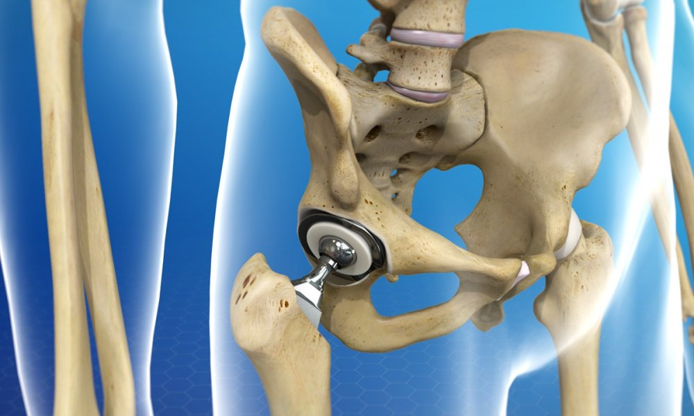 Options for Surgical Approaches in Total Hip Replacement