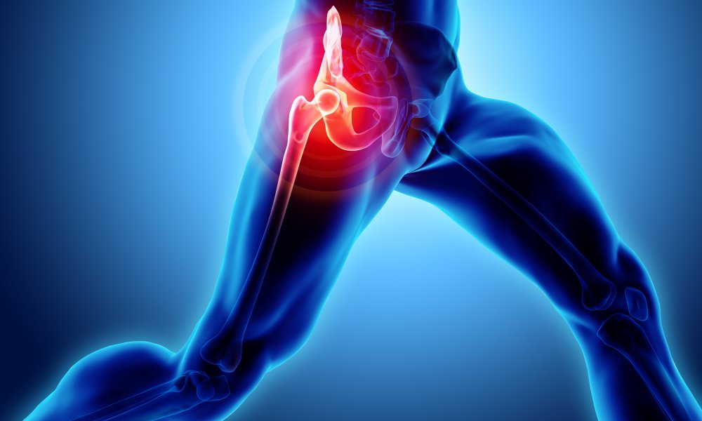 Hip and Knee Replacement Video Archive