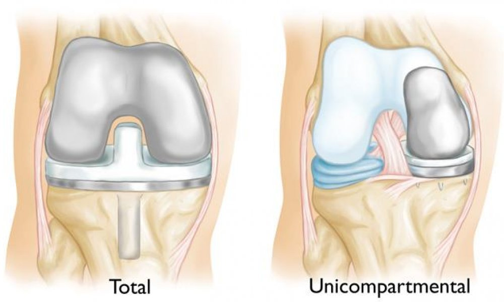 an image involving total and partial knee replacement