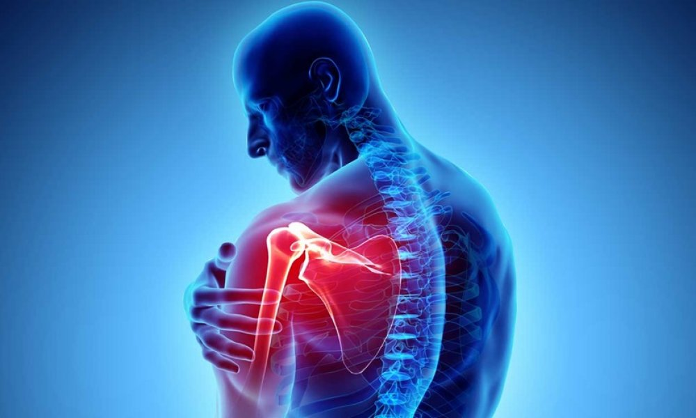 Shoulder Pain Caused by Rotator Cuff Tears