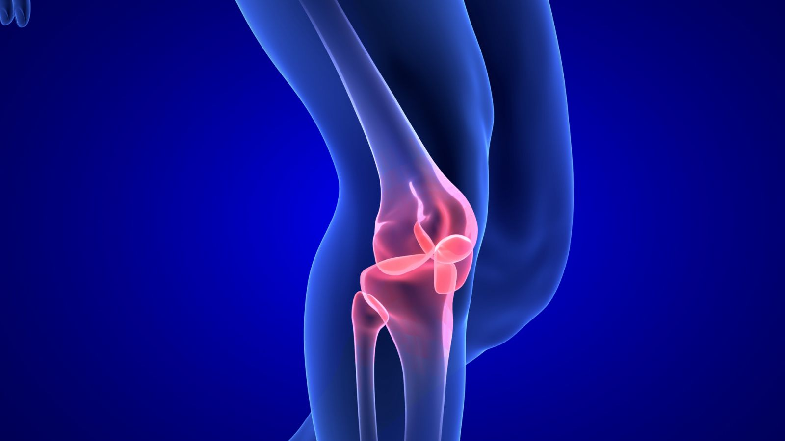 graphic of knee pain