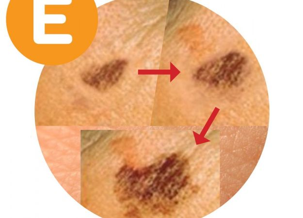 Melanoma detection: The ABCDE rule