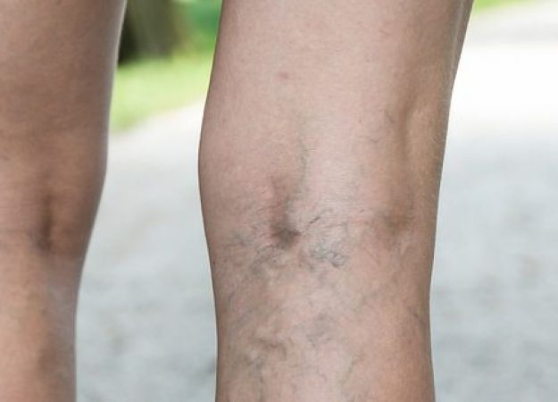 5 Facts about Varicose Veins