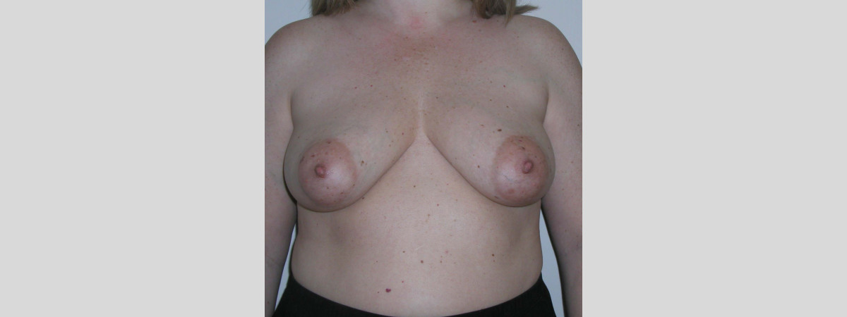 Before This woman in her 30s wanted a breast lift with a reduction in size.  Dr. Kavali performed a short scar breast lift.
