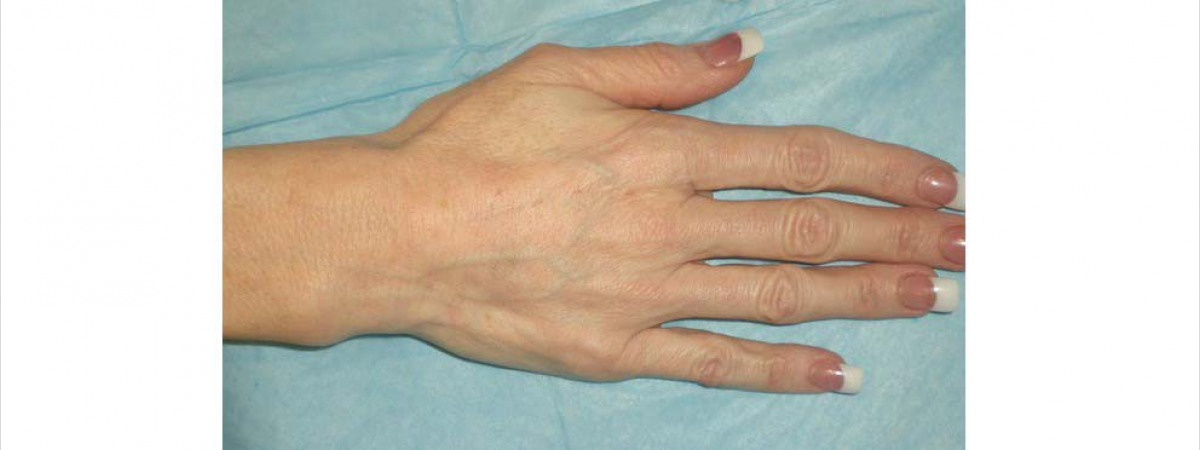 After Before and After 1 syringe of Radiesse to each hand.  Radiesse is a collagen-stimulator and filler that plumps up hollows–great for hands and faces!
