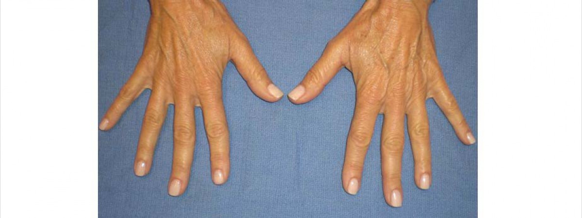 Before This woman in her 50s had 1 syringe of Radiesse (1.5 ml each) added to each hand to fill the hollows and reshape her hands.