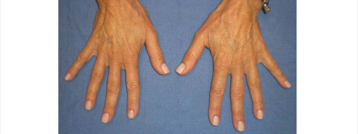 After This woman in her 50s had 1 syringe of Radiesse (1.5 ml each) added to each hand to fill the hollows and reshape her hands.
