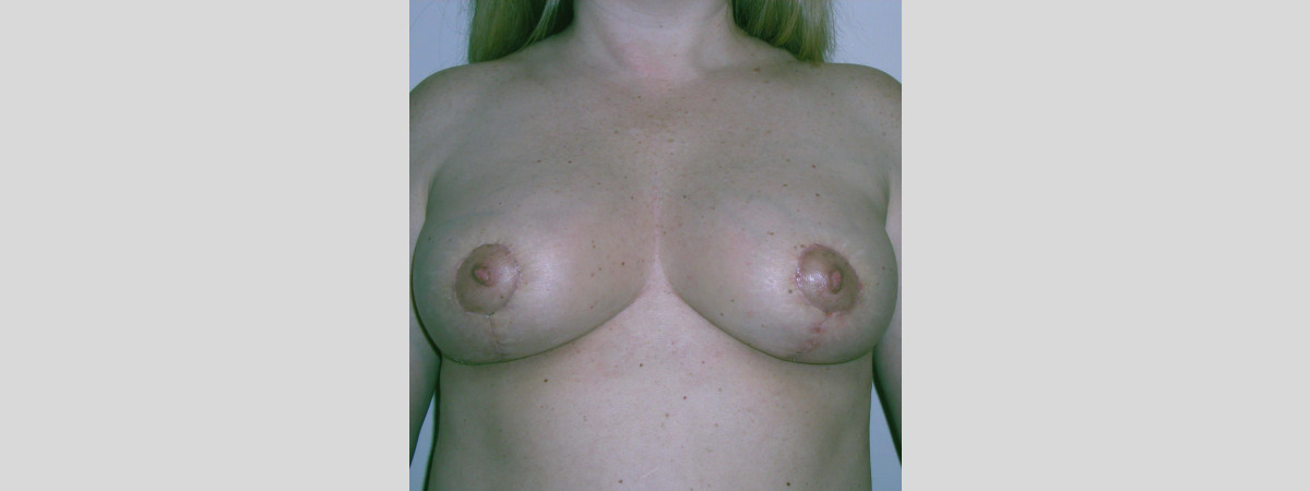 After This woman in her 30s wanted a breast lift with a reduction in size.  Dr. Kavali performed a short scar breast lift.