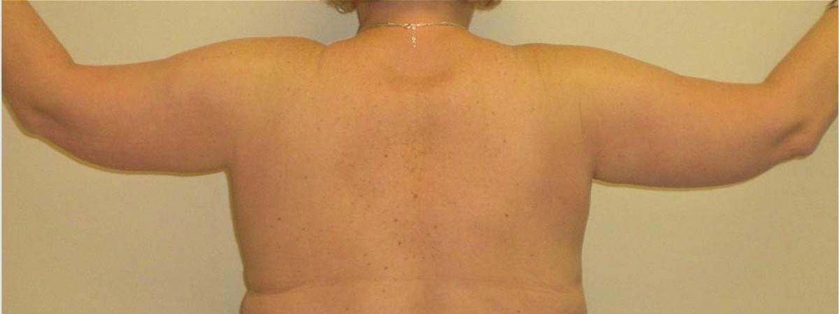 After This 53 year old female wanted a tighter contour for her arms.  She had liposuction and brachioplasty (arm lift) to accomplish her goals.