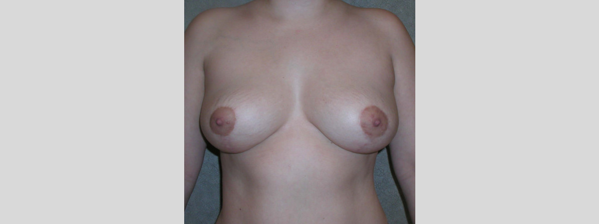 "After This woman had a SPAIR short scar breast lift.  Her ""after"" photos were taken about 1 year after surgery."