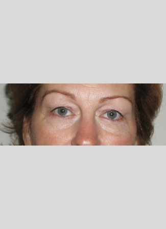 Before Room for eyeshadow!  Upper blepharoplasty and laser resurfacing open these eyes and tigthten the lower eyelid skin.