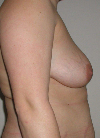 "Before This woman had a SPAIR short scar breast lift.  Her ""after"" photos were taken about 1 year after surgery."