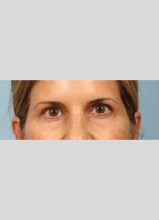After This Atlanta woman had an upper blepharoplasty and a browlift to rejuvenate her eye appearance.
