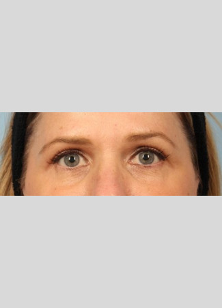 After Upper eyelid blepharoplasty gave this woman a brighter look.