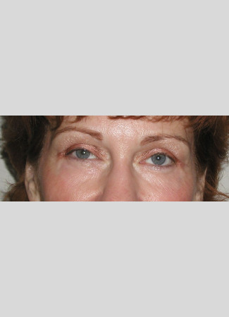 After Room for eyeshadow!  Upper blepharoplasty and laser resurfacing open these eyes and tigthten the lower eyelid skin.