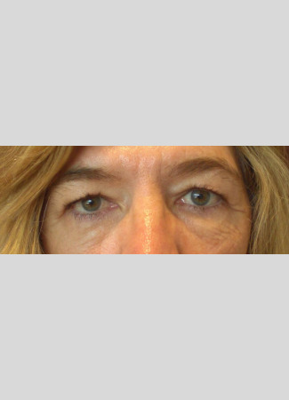 Before Upper eyelid blepharoplasty removed the extra skin and fat from the eyelids and made the eyes appear more open.