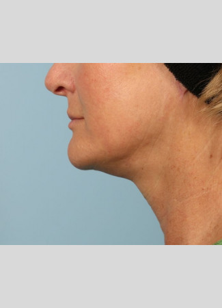 After A high SMAS left as part of Dr. Kavali's facelift surgery gives this Atlanta woman a tighter neck, jawline and lower face.  She is shown about 6 months after surgery.