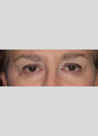 Before Upper blepharoplasty surgery was done by Dr. Kavali to remove extra skin and fat from the eyelids.  A browlift would complete this transformation and lift the eyes even more.