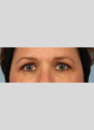 Before Upper eyelid blepharoplasty gave this woman a brighter look.