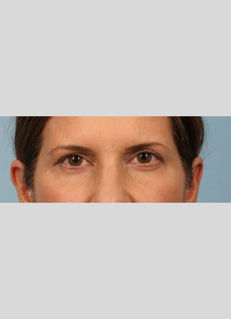 Before This Atlanta woman had an upper blepharoplasty and a browlift to rejuvenate her eye appearance.