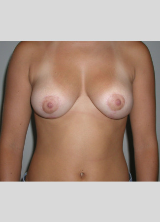 After This woman in her early 20s wanted smaller, perkier breasts.  This was done using a short scar technique (SPAIR).