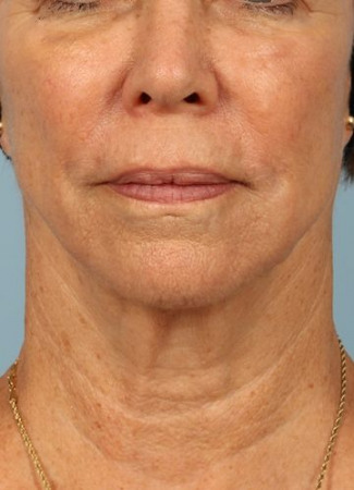 After Ulthera gave this woman a tighter jawline and slimmer neck contour.  Note how it also tightened her neck bands.