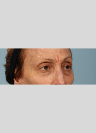 Before Botox softens lines caused my muscle movement and can brighten a face by removing shadows caused by lines and creases.  Botox was used here between the brows and for the crows' feet (smile lines).