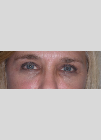 After Upper eyelid blepharoplasty removes the extra skin and fat in the upper eyelid, making the eye appear more open and bright.