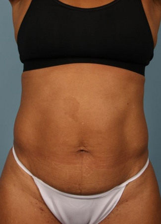 Before This woman has had prior pregnancies, but wanted a smaller abdominal contour.  She had 6 cycles of CoolSculpting for her abdomen and waist.