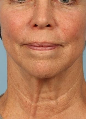 Before Ulthera gave this woman a tighter jawline and slimmer neck contour.  Note how it also tightened her neck bands.