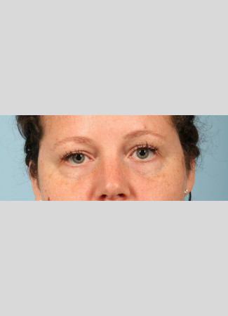 Before This woman wanted to correct the hollows under her eyes. We used one syringe of Juvederm Vollure and one syringe of Juvederm Ultra to get this beautiful result. The