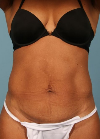After This woman has had prior pregnancies, but wanted a smaller abdominal contour.  She had 6 cycles of CoolSculpting for her abdomen and waist.