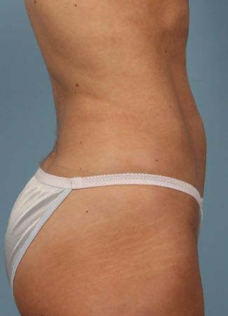 After This Atlanta woman chose CoolSculpting to contour her abdomen. She is shown 2 months after her treatment was completed.