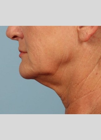 Before Neck contouring by Dr. Kavali.  This woman had a facelift with necklift to meet her goals.
