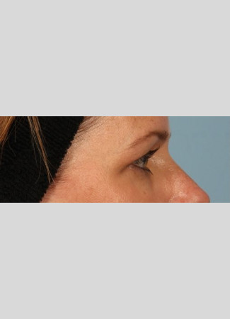 Before Note the skin that is no longer sitting on the eyelash line.  After upper blepharoplasty surgery with Dr. Kavali, there is normal space now between the lashes and the skin.