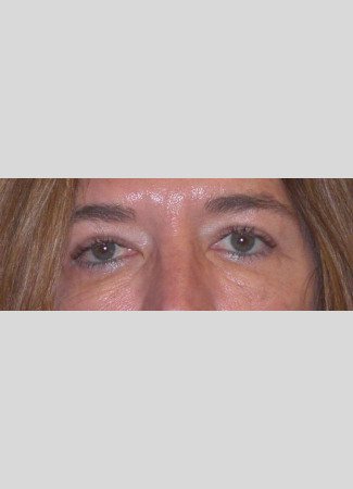 After Upper eyelid blepharoplasty removed the extra skin and fat from the eyelids and made the eyes appear more open.