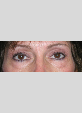 After This woman was concerned about heavy upper eyelids and underwent an upper blepharoplasty with Dr. Kavali to remove the extra skin.