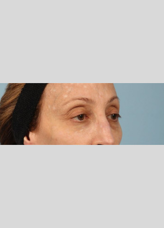 After Botox softens lines caused my muscle movement and can brighten a face by removing shadows caused by lines and creases.  Botox was used here between the brows and for the crows' feet (smile lines).